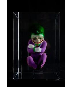 Jokerfoetus